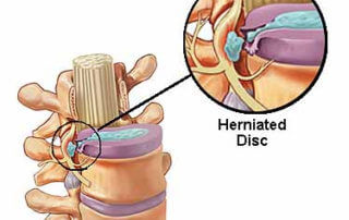 Herniated Disc and NUCCA