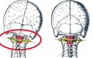 NUCCA Migraine Relief